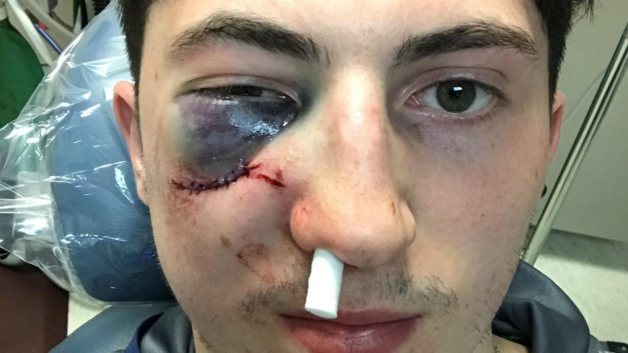 Gotta See It: Zach Werenski's nasty eye after taking puck ...