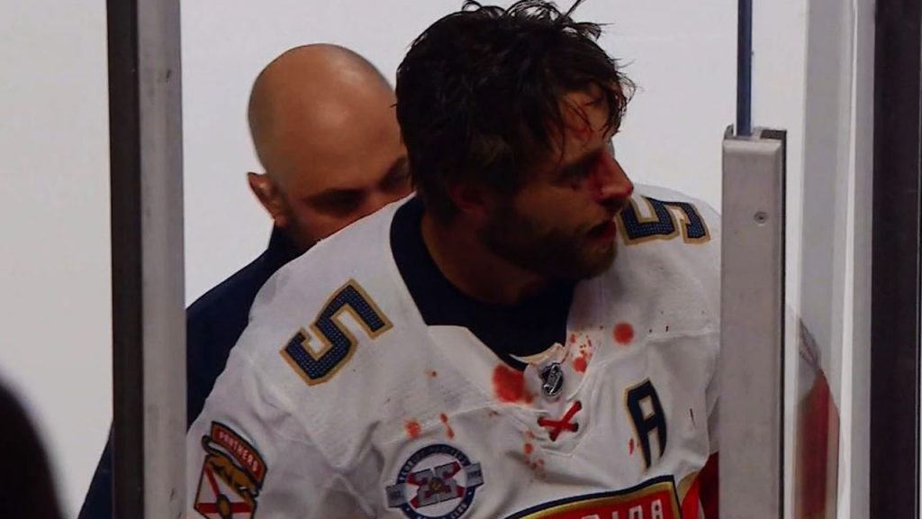 Aaron Ekblad Bleeding After Punch From Tie Domi Max Domis Sucker Offers Bad First Impression With Cana Ns Sportsnet